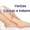 Conheça as causas e tratamentos para varizes