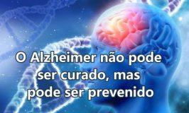 Manter nosso cérebro ativo nos protege do Alzheimer