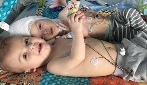 Gêmeos siameses comovem internautas ao trocarem carinhos em vídeo