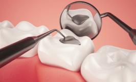 Estudos anunciam o fim das obturações e dentaduras
